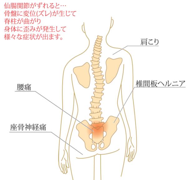 仙腸関節のズレ